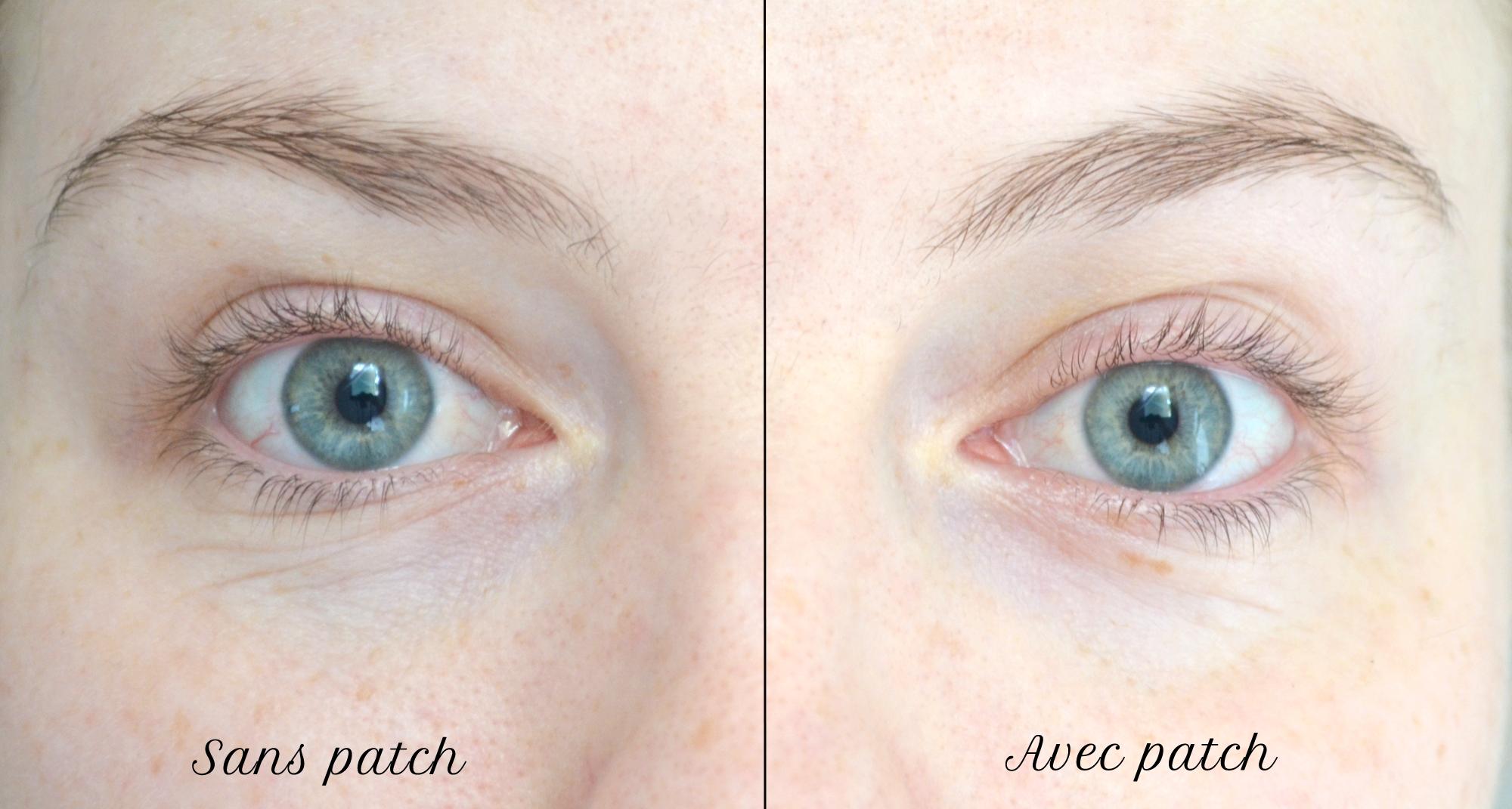 patch-pour-le-contour-des-yeux-avant-apres