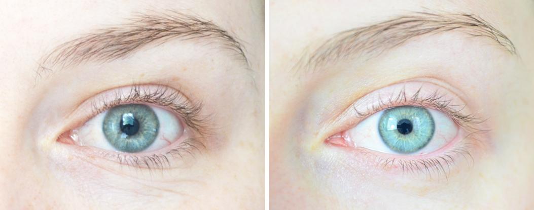 contour-des-yeux-whitening-anti-rides-whamisa-organic-flowers-eye-essence-avant-apres