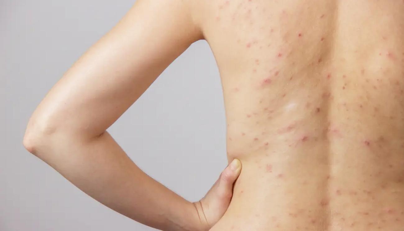 acne-corps-traitement-produit-soin-astuces